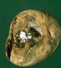 potato dry rot disease