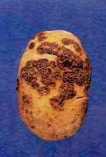 common potato scab